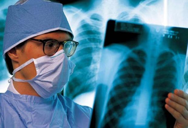 Донбас накрила  епідемія туберкульозу. Фото: 112 Україна.