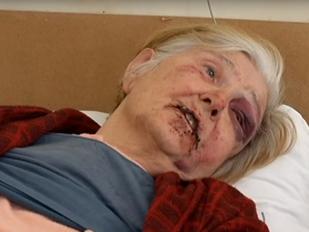 Постраждала пенсіонерка. Фото:скрін відео