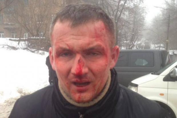 Нардепа Левченка побили в Києві. Фото: Лівий берег.