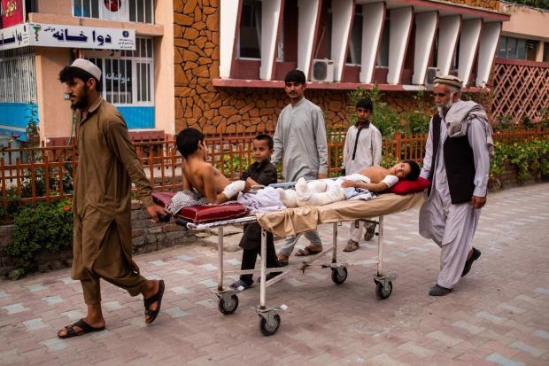Дітям ампутували ноги, пошкоджені вибухом. Фото: NYT